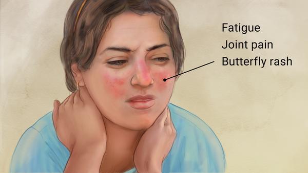 Multiethnic Lupus