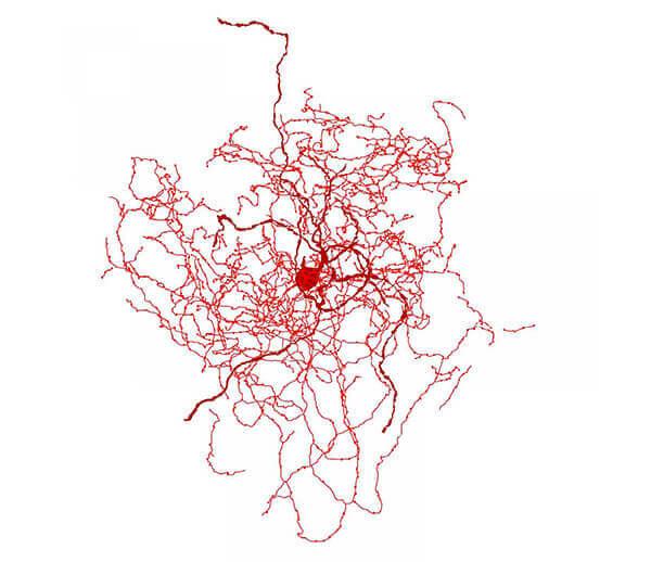 neurological disease