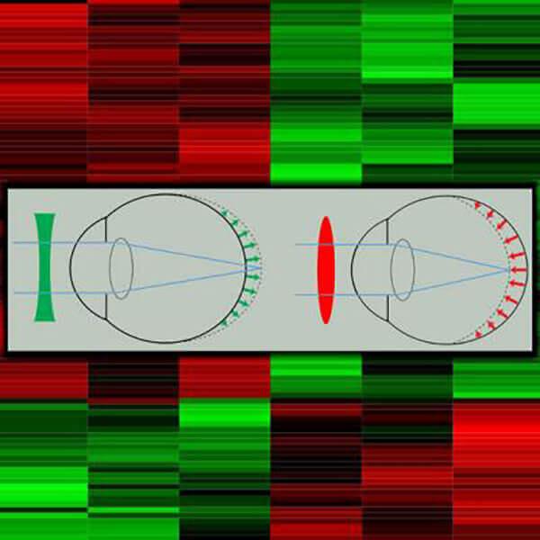Myopia Gene Expression