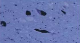 Substantia nigra neurons in PD patients